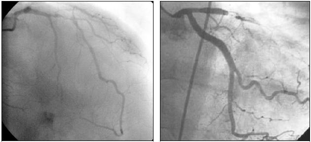 Аортальный стеноз кардиолог сайт о заболеваниях сердца